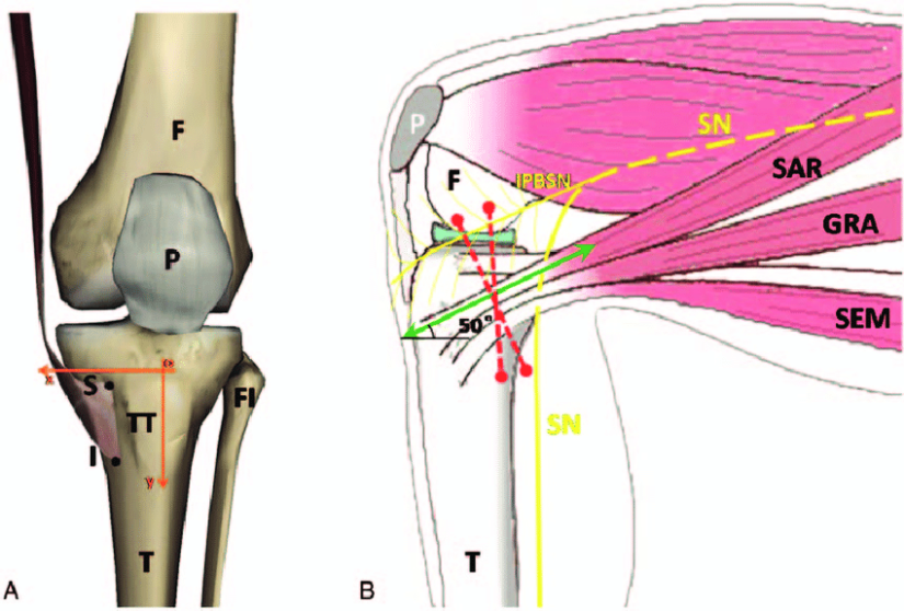 The-diagram-of-pes-anserinus-saphenous-nerve-distribution-and-tibia-A-F-femur-FI